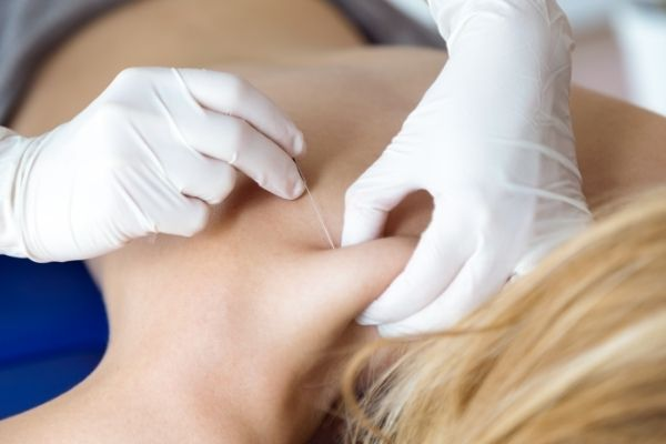What Are Trigger Point Injections?